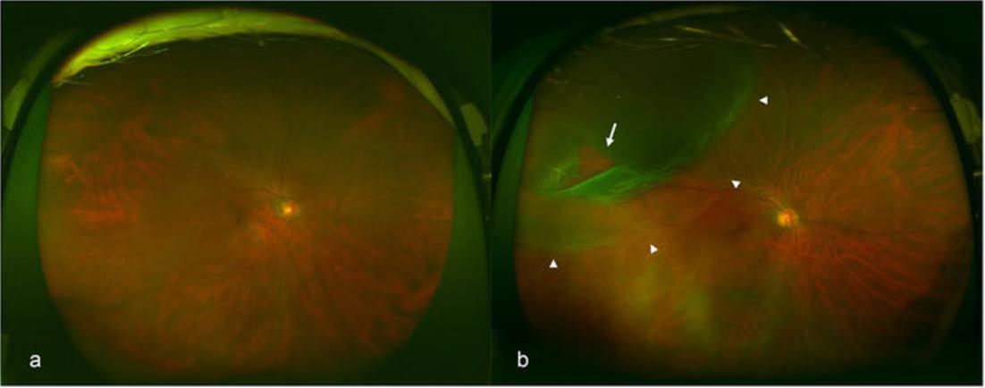 広角眼底画像からAIを用いて網膜剥離判定AUC98%を達成