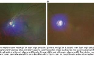 【世界初】広角眼底画像からAIを用いて緑内障判定AUC 94%を達成