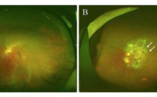 【世界初】広角眼底画像からAIを用いて加齢黄斑変性判定AUC 99%を達成
