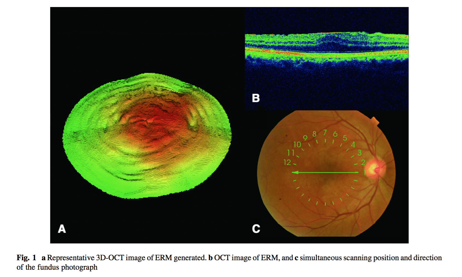 3D OCTデータに対しDeep Learningを用いた網膜上膜検知に関する論文が国際学術論文に掲載されました。