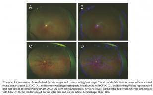 【世界初】広角眼底画像からAIを用いて網膜中心静脈閉塞症判定でAUC99%を達成