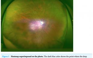 【世界初】広角眼底画像からAIを用いて特発性黄斑円孔判定でAUC99%を達成