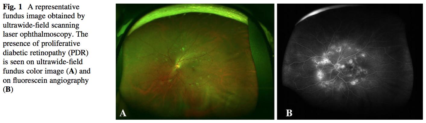 広角眼底画像からAIを用いて増殖糖尿病網膜症判定でAUC97%を達成